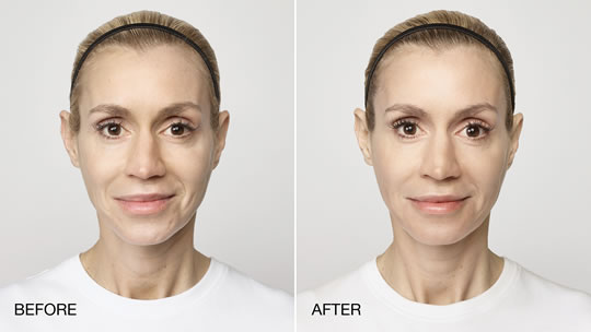 restylane-before-and-after-photo-krista-4