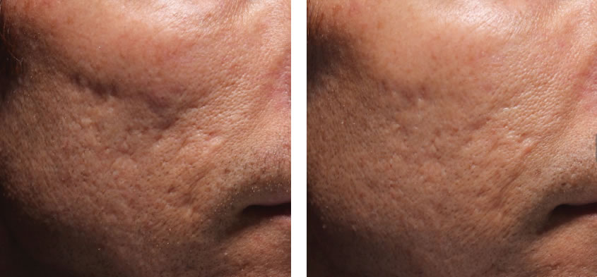 Acne Scar Treatments With Juvederm Dr Michele Green M D