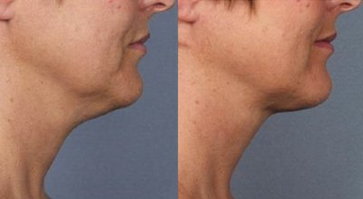 kybella-before-after-2